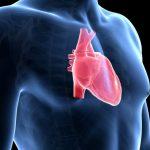 Cos'è l'endocardite